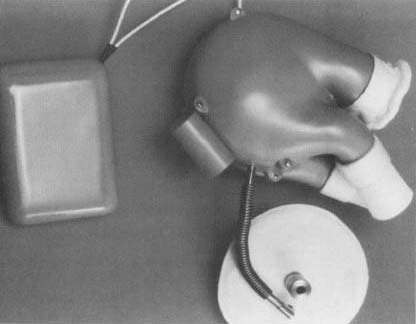 The first implantation of an artificial heart in a human being ocurrred in 1969. Intended as a temporary measure, its goal was to keep a cardiac patient alive until a heart transplannt could be performed.
