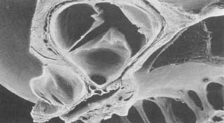 An electron micrograph of a human aortic valve.
